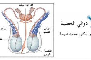 دوالي الخصية و تأثيرها على خصوبة الرجل وعلاجها