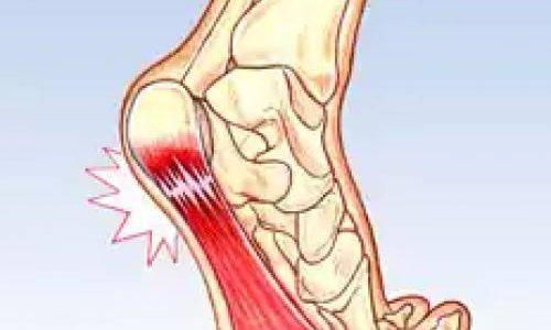 طرق مقاومة ألم المفاصل