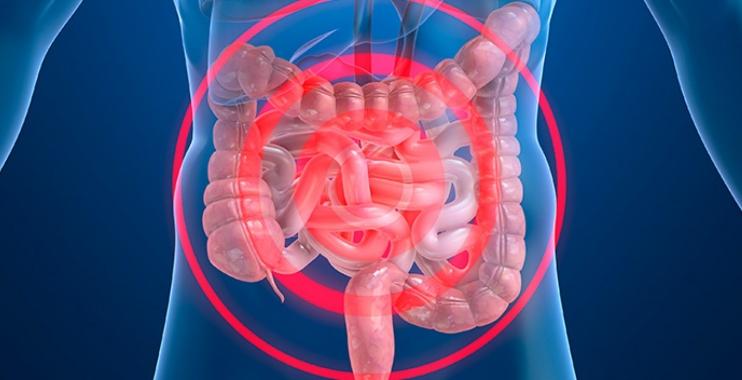 أعراض تشنج القولون وطرق علاجه