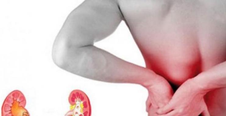 أعراض المغص الكلوي وطرق علاجه